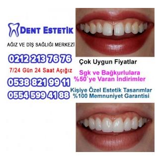 Zirkonyum Diş Uygulamalarında Önemli Noktalar