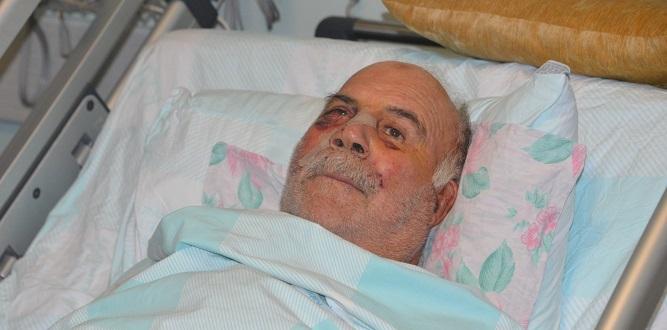 Spiral Testere İle Yüzü Parçalanan Hasta, Sağlığına Kavuştu
